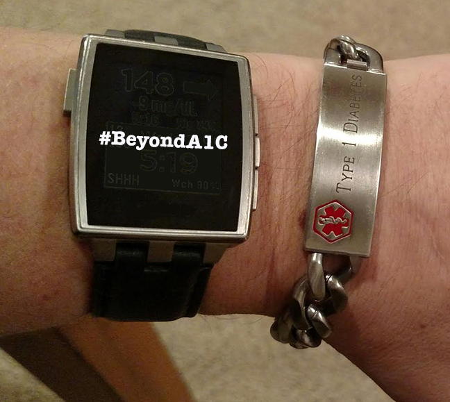 Beyond A1C watchface