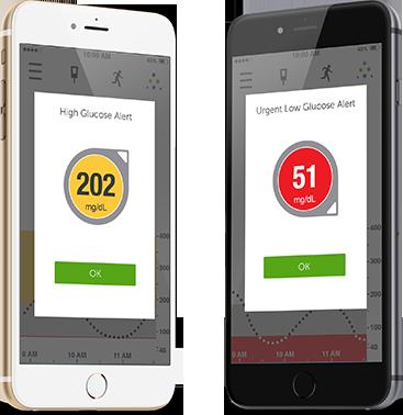 Dexcom G5 apps