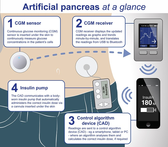 Artificial pancreas what you should know solutioingenieria Images
