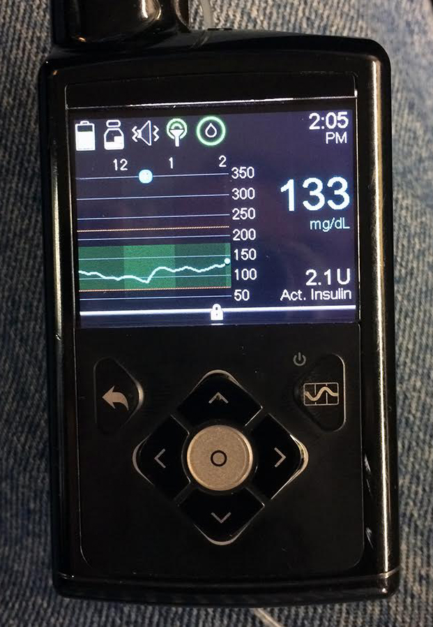 Medtronic Artificial Pancreas >> What's New in Diabetes Technology for 2017 | DiabetesMine