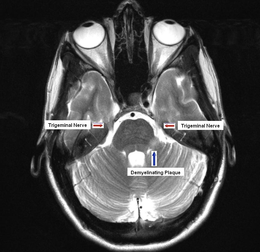 ArUn\'s MRI Protocols: Trigeminal Neuralgia or Facial Hemispasm MRI ...