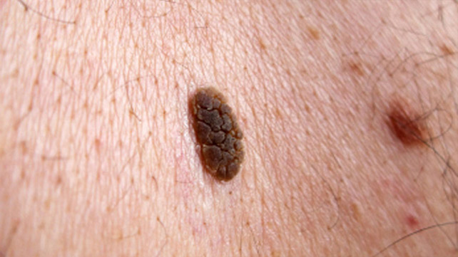 Spotting the Signs of Skin Cancer advise