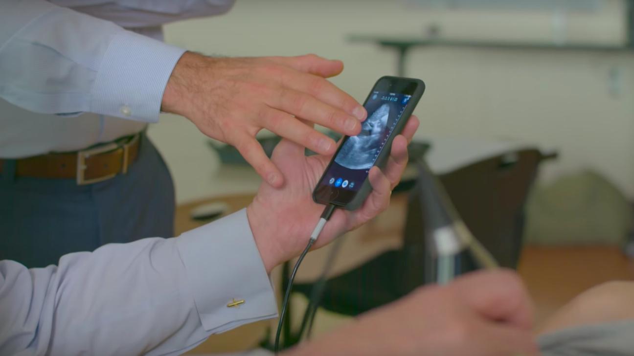 iphone ultrasound