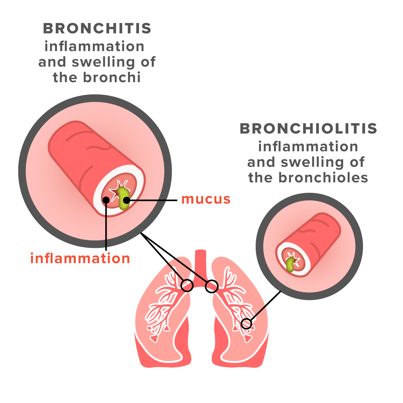 Bronchiolitis vs bronchitis symptoms causes and treatments symptoms sciox Image collections
