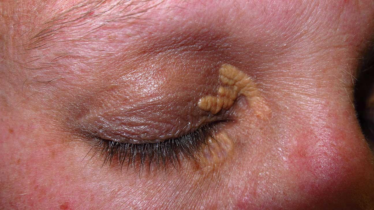 Xanthelasma Treatment Causes Photo And More