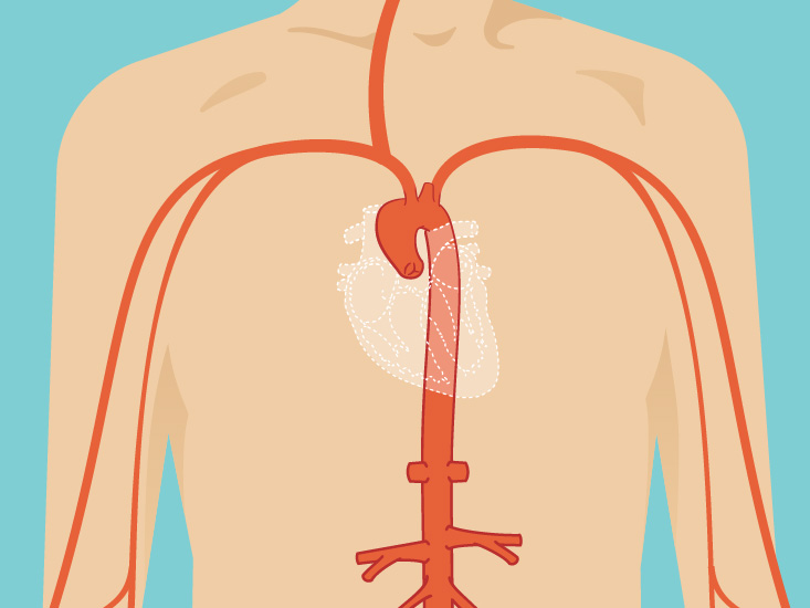 aneurysm: causes, symptoms & diagnosis, Human Body