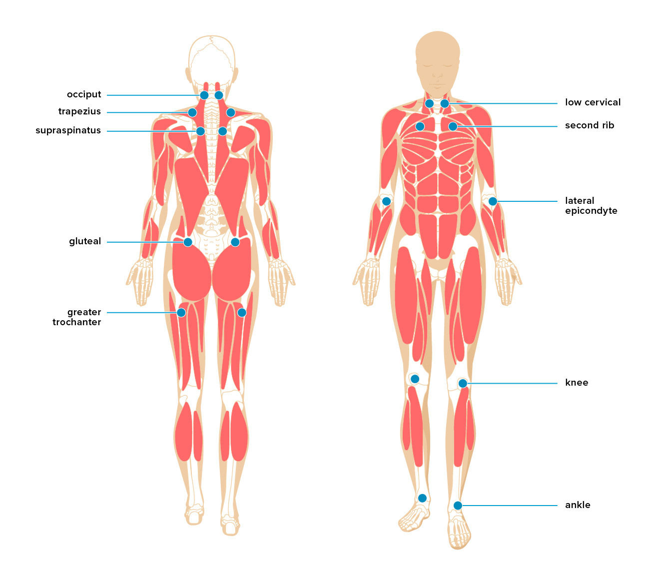 Body Pain Diagram Organs Wiring Diagram