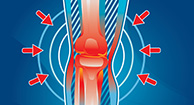 illustration of knee pain