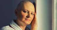 woman under treatment for stage 4 breast cancer