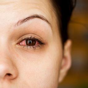 Eye Allergies Causes and Symptoms