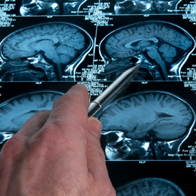 hand with pen pointing at brain scan xrays