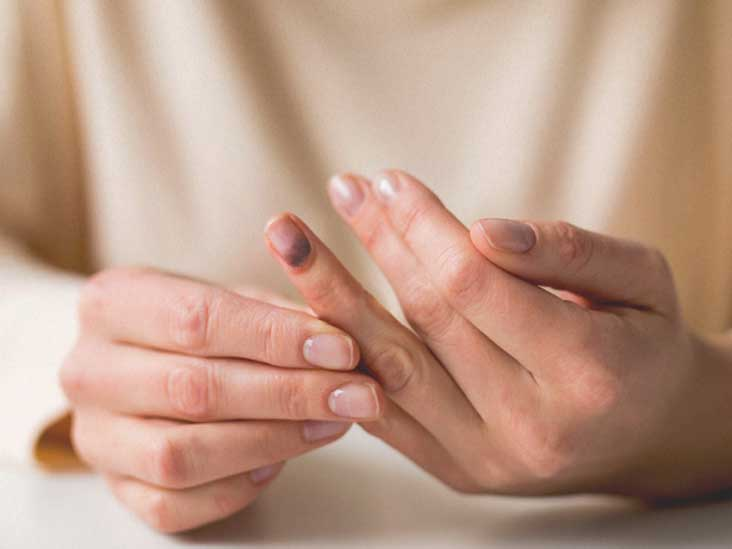 Smashed Finger Treatment Recovery Seeking Help And More