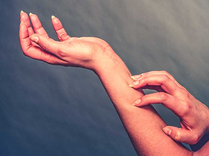 Psoriasis vs. Lupus: Symptoms, Treatment Options, and More