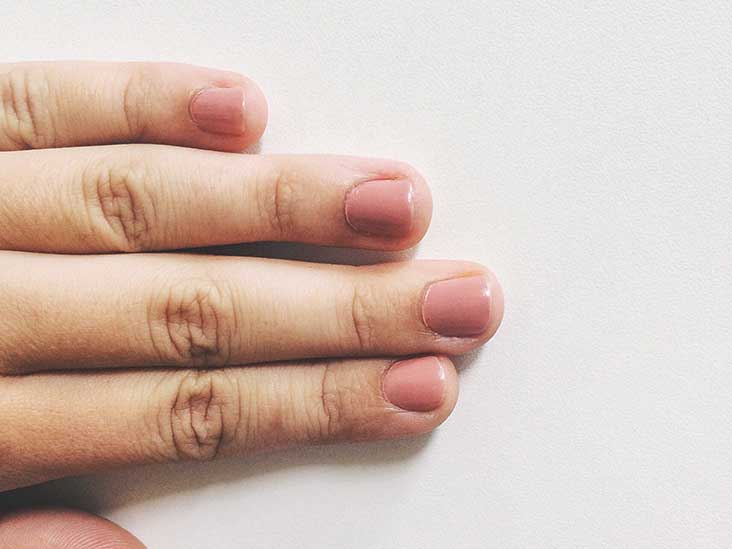 Nail Psoriasis Vs Fungus Learn The Signs