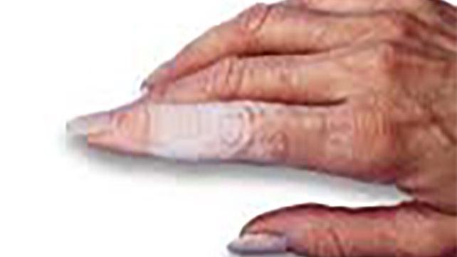 macerated skin
