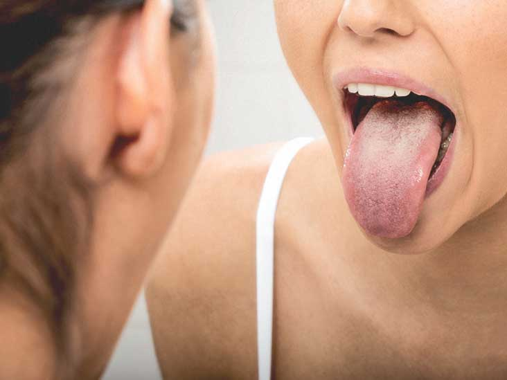 sore tongue after kissing