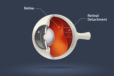 retinal detachment: types, causes, and symptoms, Skeleton
