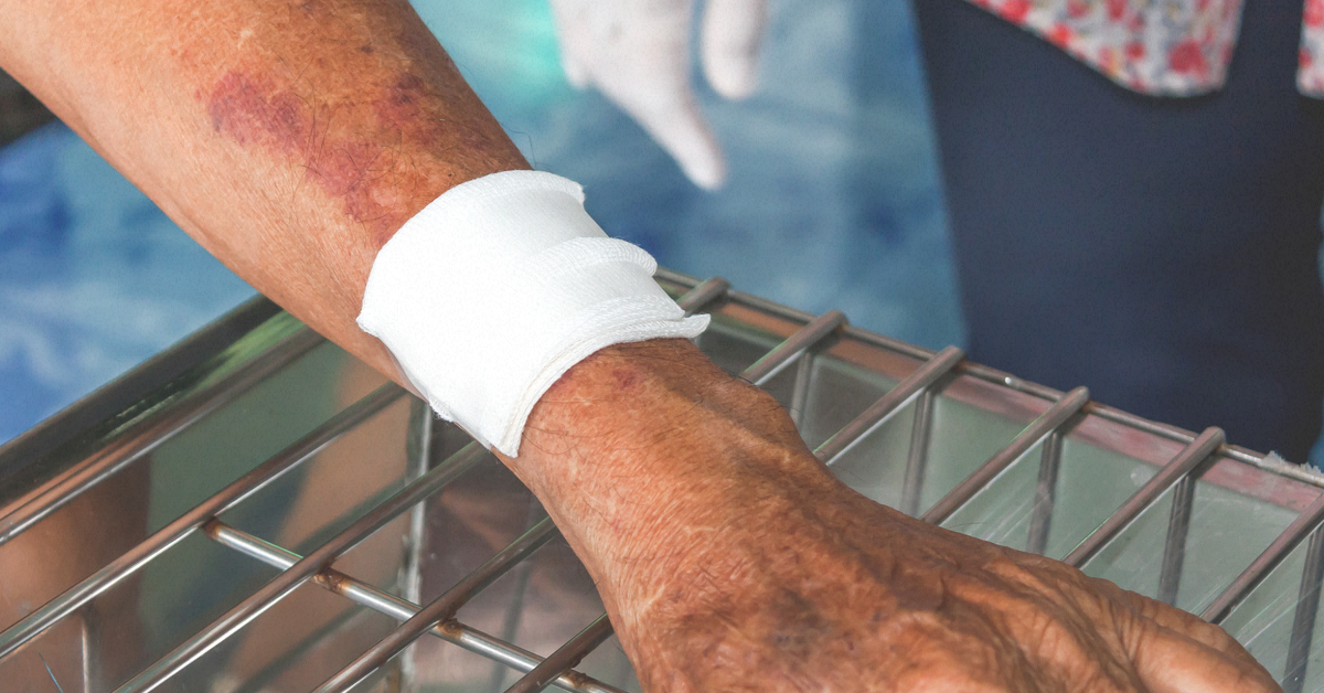 Blood Clot in Arm: Symptoms, Treatment, Prevention, and More