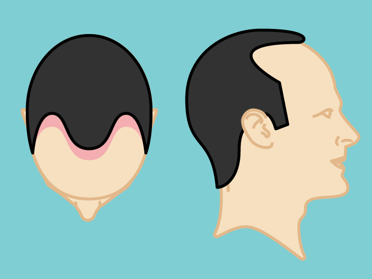 Hair Transplant: Cost of Treatment, Recovery, and More
