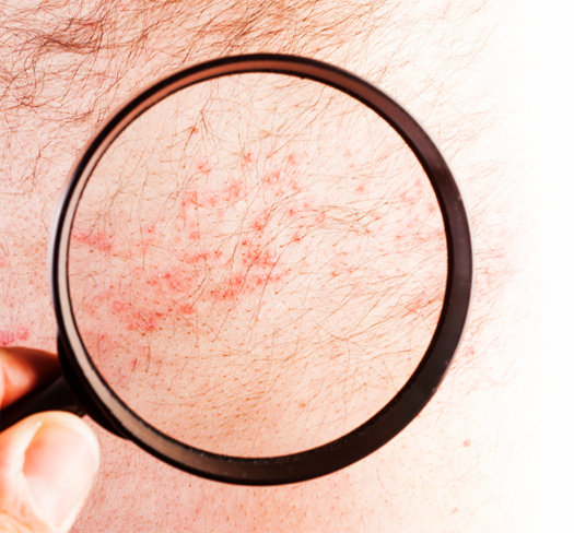 Your treatment options may depend on how severe your psoriasis is 2