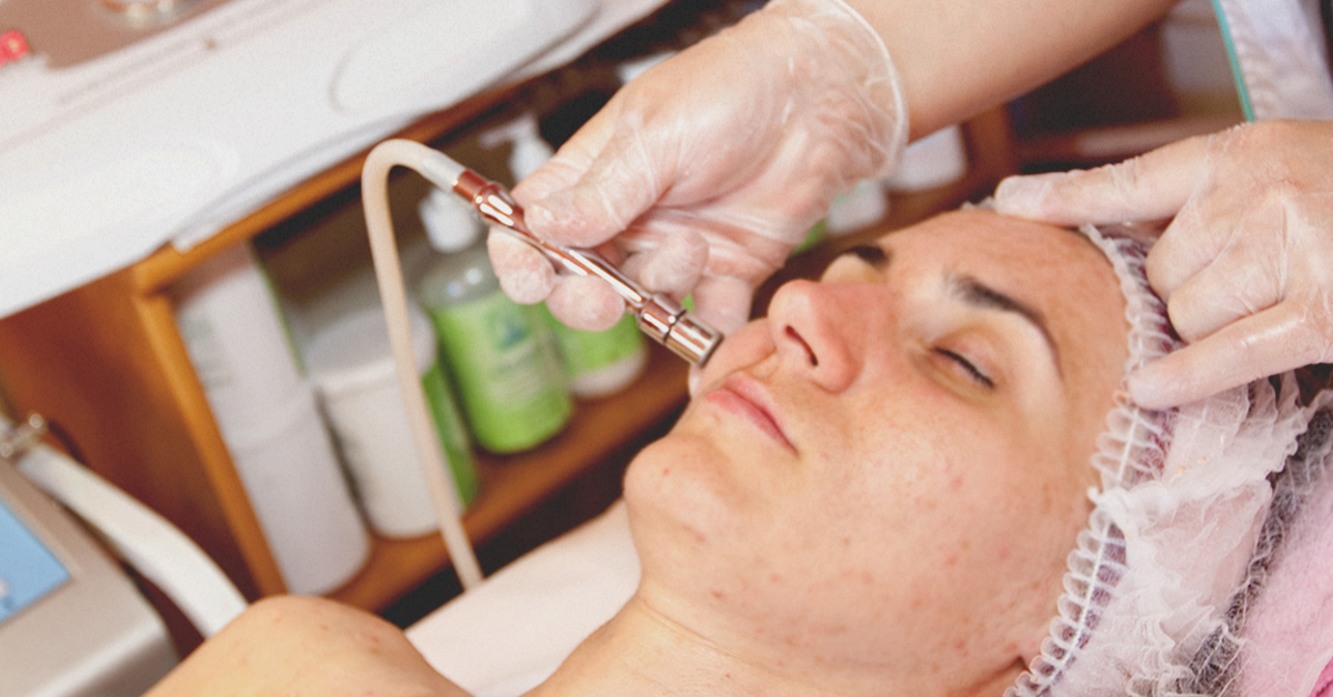 Microdermabrasion for Acne Scars: Benefits, Side Effects