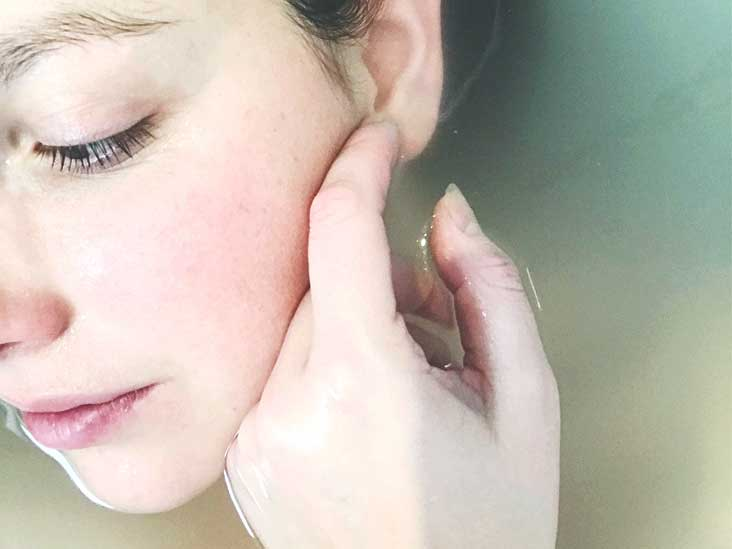 How to Pop a Cyst: On Your Face, Back, At Home, and More