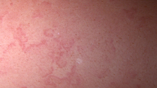 Rash scarlet treatment adults fever