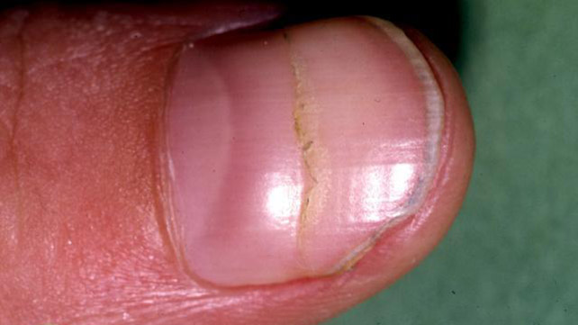 Depressions That Run Across Your Fingernail Are Called Beau S Lines These Can Be A Sign Of Malnourishment Other Conditions Cause