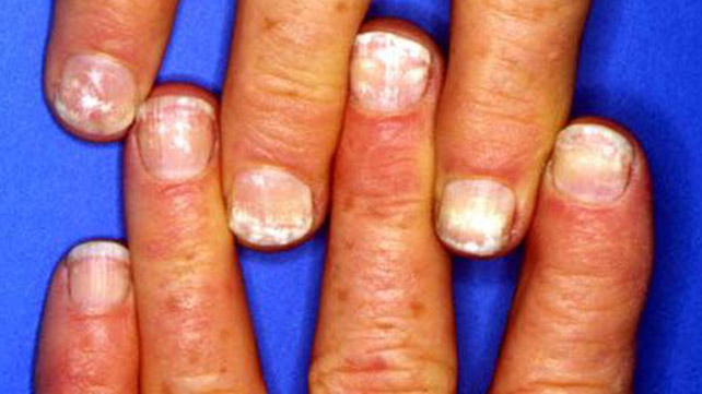 Nail abnormalities symptoms causes and prevention nonuniform white spots or lines on the nail are called leukonychia they are usually the result of a minor trauma and are harmless in healthy individuals sciox Image collections