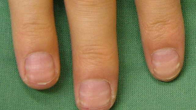 Nail abnormalities symptoms causes and prevention mees lines are transverse white lines this can be a sign of arsenic poisoning if you have this condition your doctor will take hair or tissue samples to sciox Image collections
