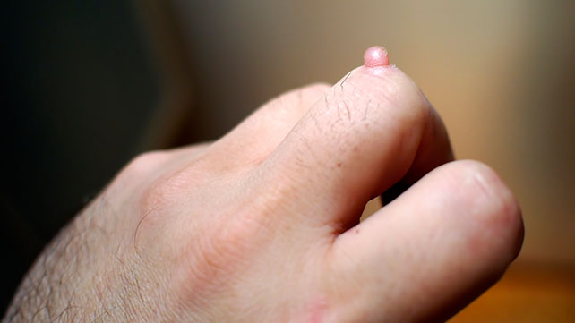 How to Get Rid of Warts on Hands - noskinproblems.com