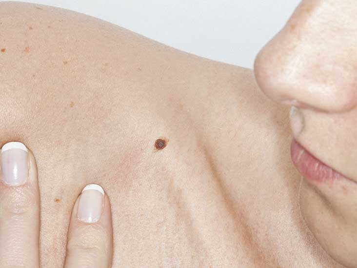 Itchy Mole Causes Treatment Symptoms And More