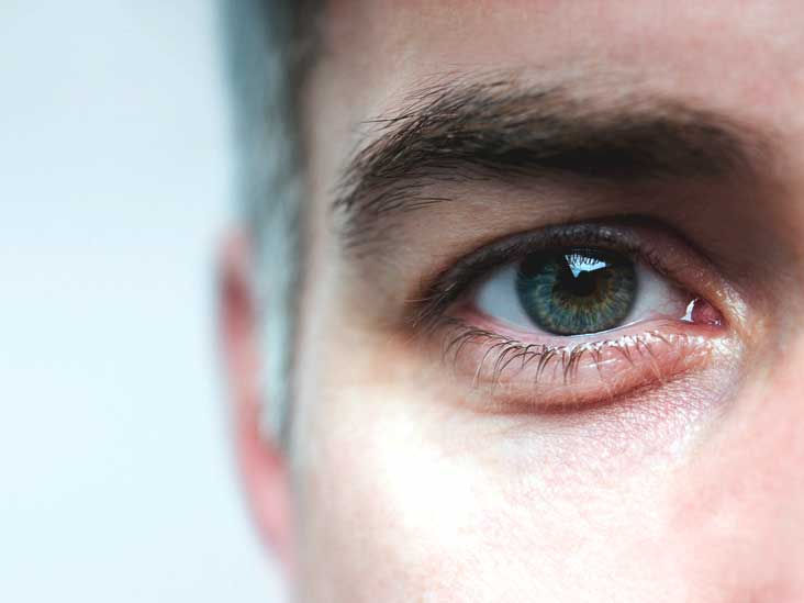 Mydriasis: Understanding Dilated Pupils
