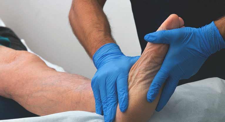 Jones Fracture: Symptoms, Treatment, and More