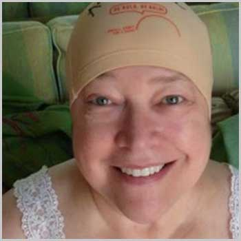 metastatic breast cancer: best blogs of the year, Skeleton