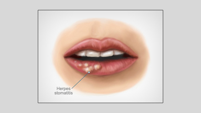 Herpes simplex encephalitis