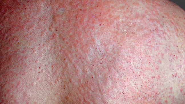 Adult-Onset Still's Disease