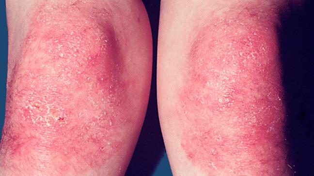 Dermatomyositis Causes Symptoms And Treatment