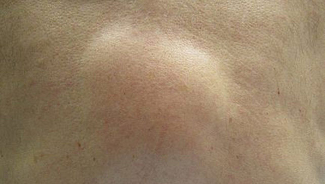 Squishy Ball Under My Skin : Lipoma (Skin Lumps): Causes, Diagnosis and Treatments