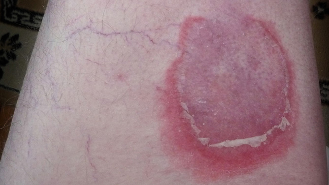 Pemphigoid Types Causes And Symptoms