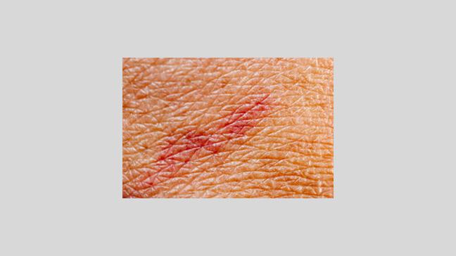 Stasis Dermatitis & Ulcers
