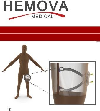 Hemova