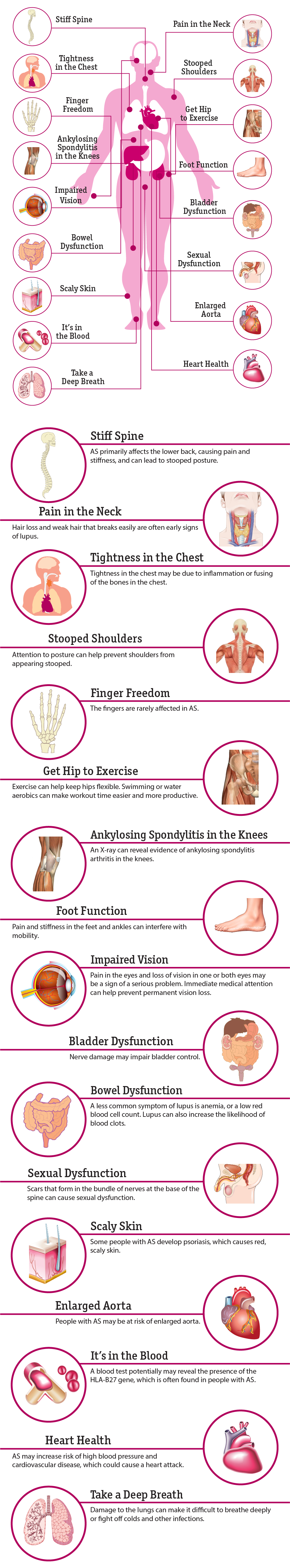 living through the pain of ankylosing Living with ankylosing spondylitis through the effective & natural ways to cure finger swelling and pain ankylosing spondylitis is a chronic disease that.