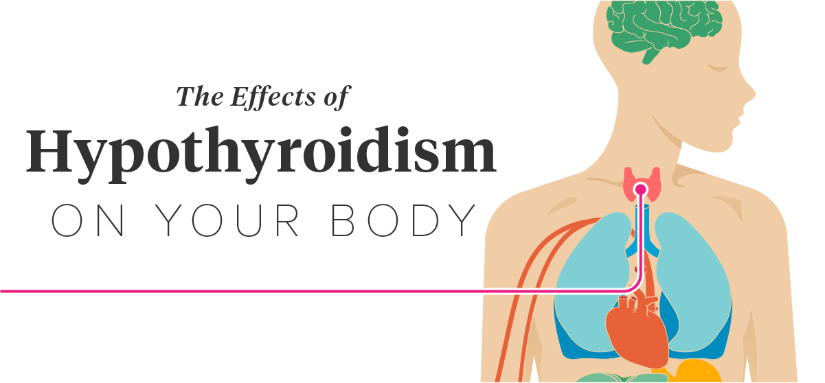 Effects Of Hypothyroidism Thinning Hair Heart Attack And More