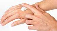 Person treating Psoriasis outbreak on the hand with ointment