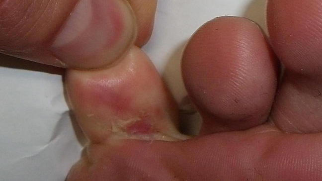 Athlete's Foot: Fungal Infection and Athlete's Foot Symptoms