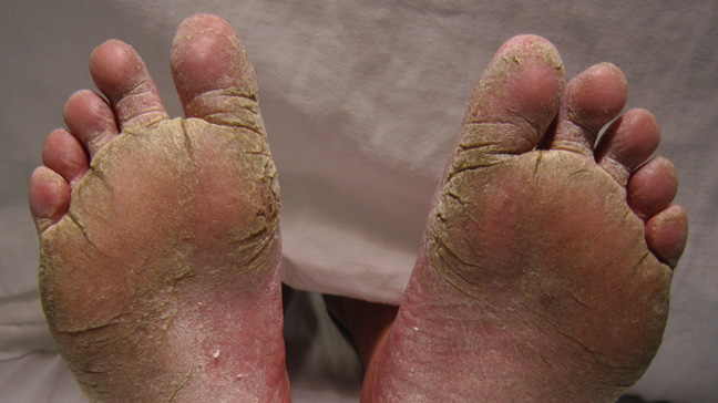 athletes symptoms sore foot thumbs Dry