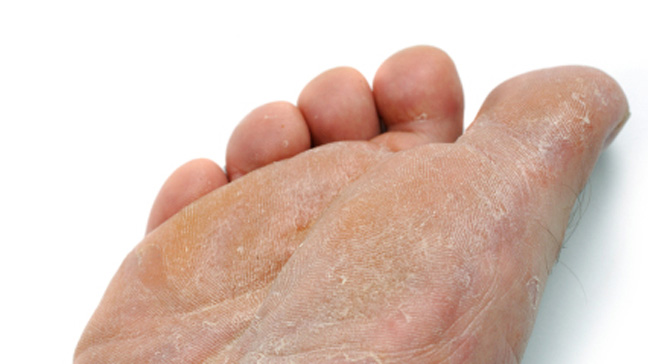 peeling skin between toes #11