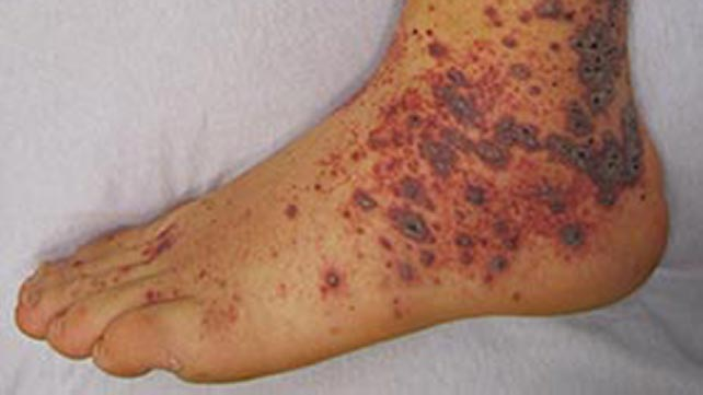Bleeding Into The Skin Causes Diagnosis And Treatments