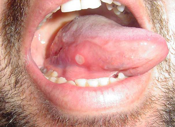 What causes canker sores in mouth